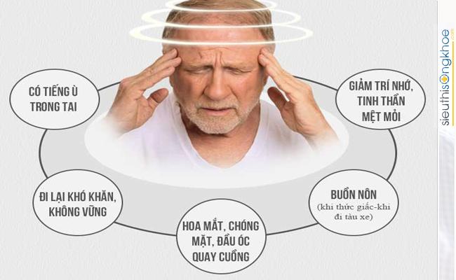 các bài tập chữa bệnh rối loạn tiền đình